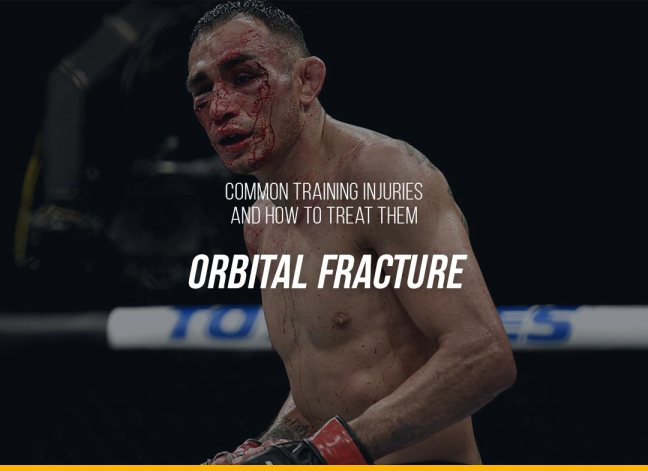 Common Training Injuries and How to Treat Them - Orbital Fracture